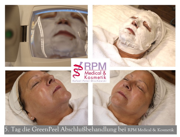 Behandlungstag Nr. 5 - Green Peel classic® (Tag der Beauty Finish Behandlung) | RPM Medical & Kosmetik Rafael-Peter Mischewski Mönchengladbach