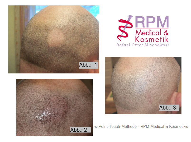 Patient mit kreisrundem Haarausfall - Alopecia | Behandelt bei RPM Medical u. Kosmetik in Mönchengladbach mit der Point-Touch-Methode | RPM Medical & Kosmetik Rafael-Peter Mischewski Mönchengladbach